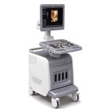 ultrazvukovoy skaner chison i3