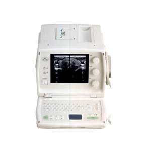 sa 600 eureka medison ultrazvukovoy skaner