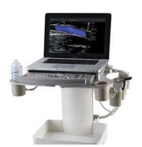 ultrazvukovaya sistema terason echo