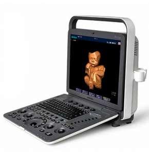 ultrazvukovoy apparat sonoscape s7