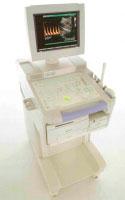 ultrazvukovoy apparat shimadzu sdu 450 xl