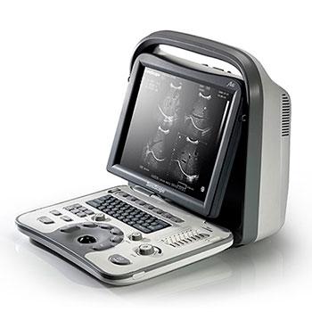 ultrazvukovoy apparat sonoscape a6