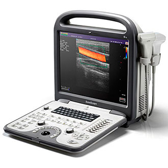 ultrazvukovoy apparat sonoscape s6pro