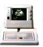 ultrazvukovoy skaner medison sa 3200